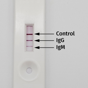 Postive Control for SARS-CoV-2 image