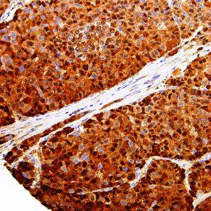 Arginase-1-IHC400-Liver