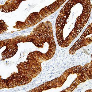 Cytokeratin-18-IHC018-Colon