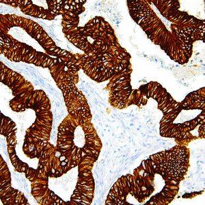 Cytokeratin-19-IHC019-Colon