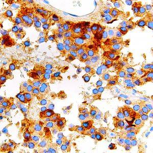 FSH-IHC580-Pituitary-Gland