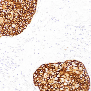 HER2-IHC002-Breast-Cancer