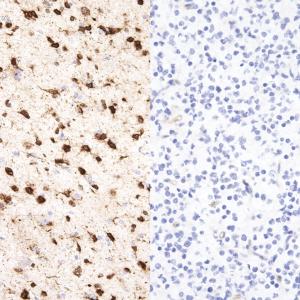 IDH1-R132H-IHC132-Glioma-pos-neg