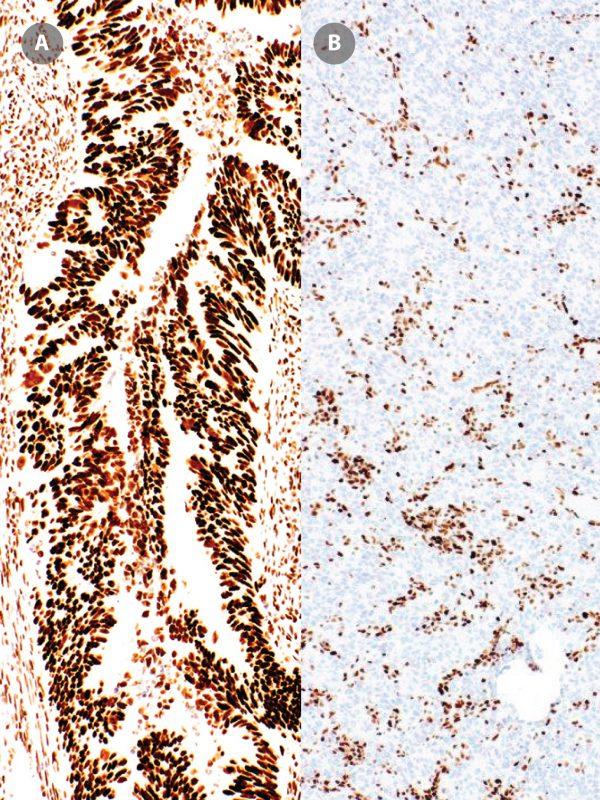 MSH6-IHC026-Colon-Cancer-pos-neg-3
