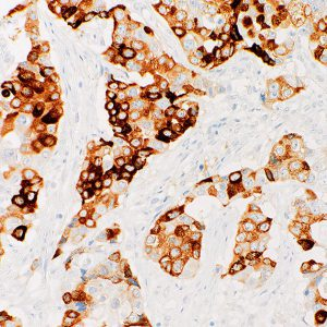 MUC6-IHC626-Pancreas