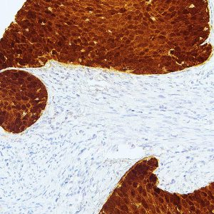 P16-IHC116-Cervical-Cancer