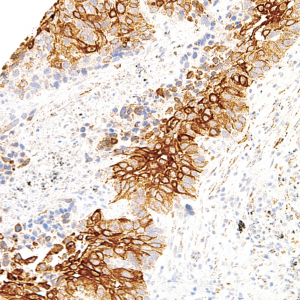 TAG-72-IHC072-Lung