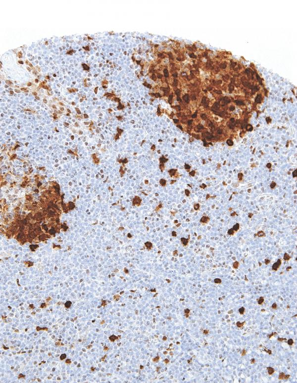 Thymidylate-Synthase-IHC697-Tonsil