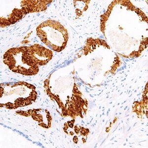 p504s-IHC504-Prostate